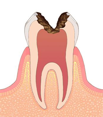 歯科用マイクロスコープ